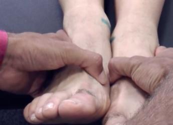 Dismetrías: diferencia de longitud de piernas